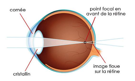 miopie la un adult masa laura pentru teste de vedere